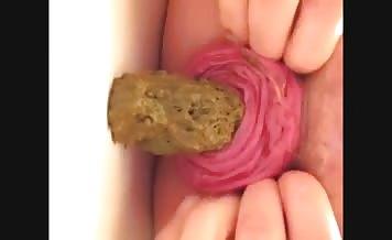 Anal prolapse while shitting