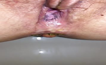 Creampied girl pooping