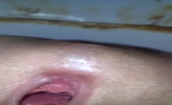 Russian girl shitting in close up